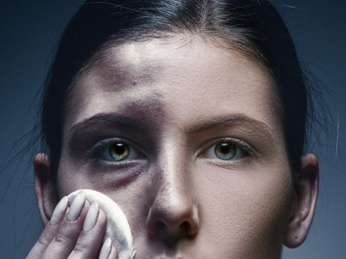 Eye for an Eye: The Anatomy of a Sexual Assault