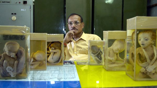 The Man Who Performed 815 Autopsies in a Single Night